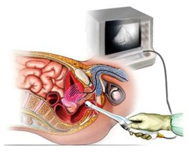 endoanal-ultrasound