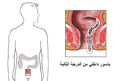 Internal Hemorrhoids