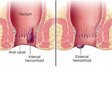 هي أوردة متوسعة تتوضع في قناة الشرج وعلى الرغم مما تسببه من إزعاج أحيانا إلا أنها تعتبر حالة شائعة نادرا ما تمثل مشكلة خطيرة.